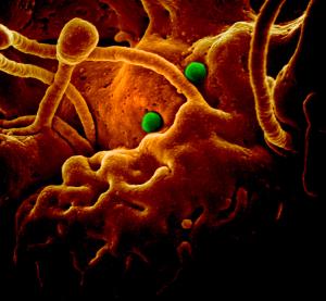 image of the virus