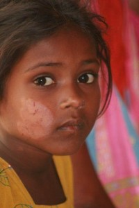 A young girl with a discolored patch of skin on her cheek looks at the camera