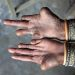 Hands (affected by leprosy) with misshapen fingers.