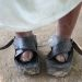 Feet affected by leprosy and covered with protective shoes.