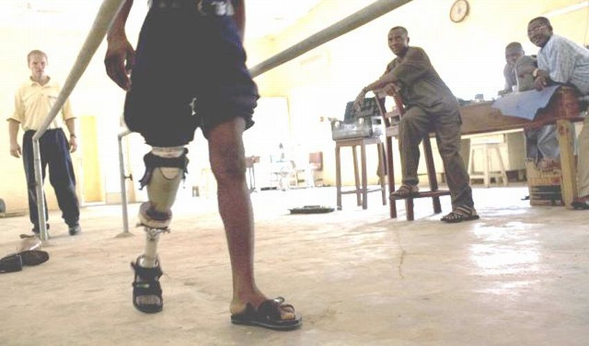 Man affected by leprosy walking while undergoing physical therapy.