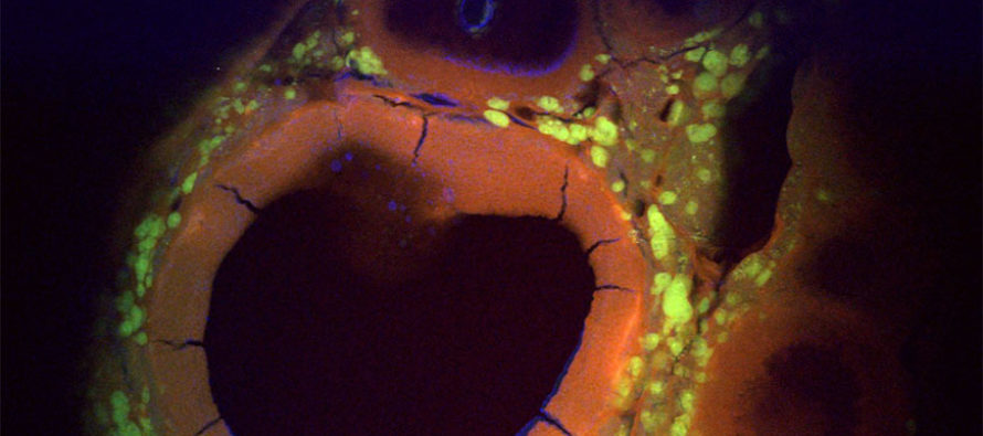 'Exquisite resolution:' Microscopes illuminate hidden, intracellular worlds